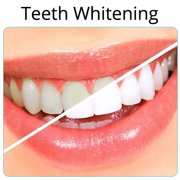 how to make teeth strong and white naturally (10) How to make Teeth Strong and white Naturally How to make Teeth Strong and white Naturally how to make teeth strong and white naturally 10