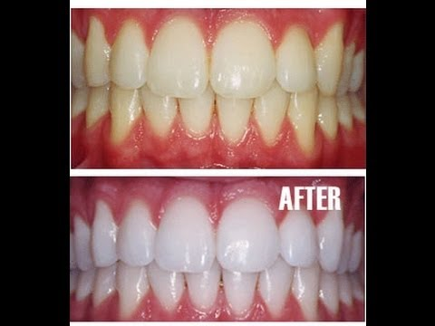 how to make teeth strong and white naturally (7) How to make Teeth Strong and white Naturally How to make Teeth Strong and white Naturally how to make teeth strong and white naturally 7